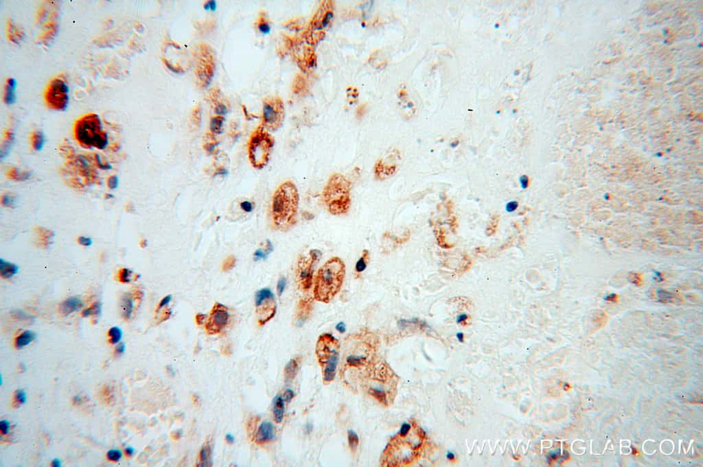 RSAD2 Antibody in Immunohistochemistry (Paraffin) (IHC (P))