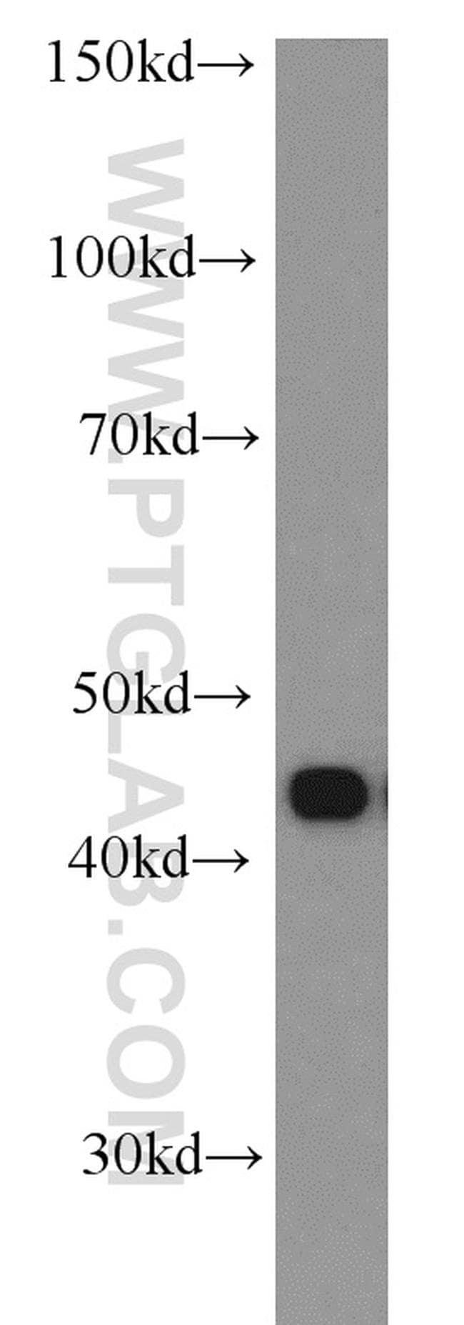 RSAD2 Antibody in Western Blot (WB)
