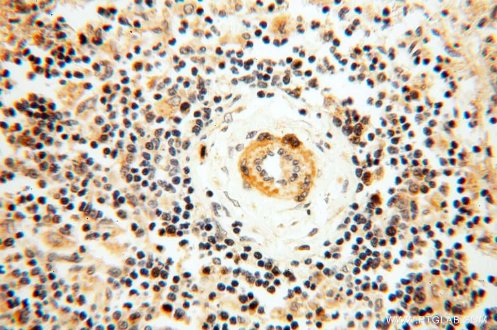 SRPX2 Antibody in Immunohistochemistry (Paraffin) (IHC (P))