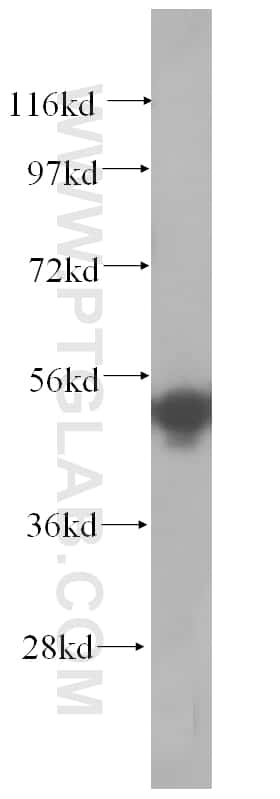 SRPX2 Antibody in Western Blot (WB)