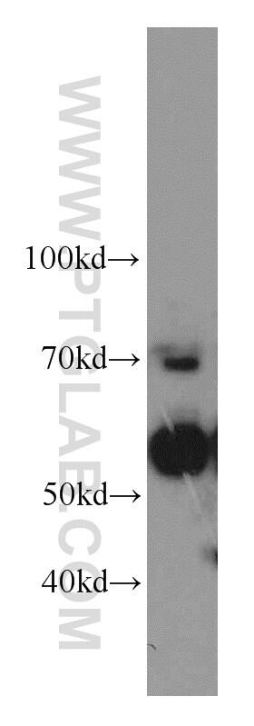 SERPINA10 Antibody in Western Blot (WB)