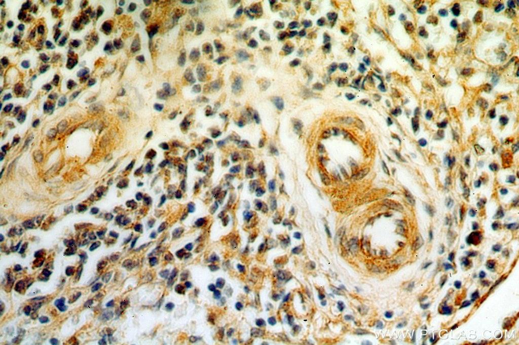 AGGF1 Antibody in Immunohistochemistry (Paraffin) (IHC (P))
