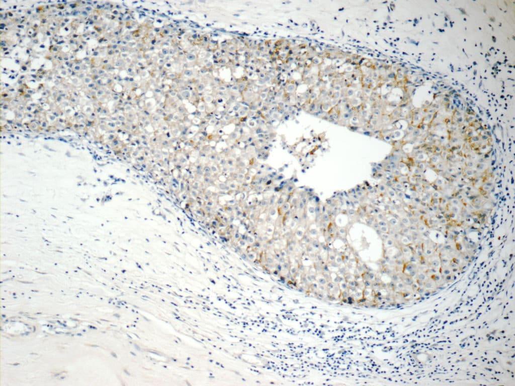 RABL3 Antibody in Immunohistochemistry (Paraffin) (IHC (P))