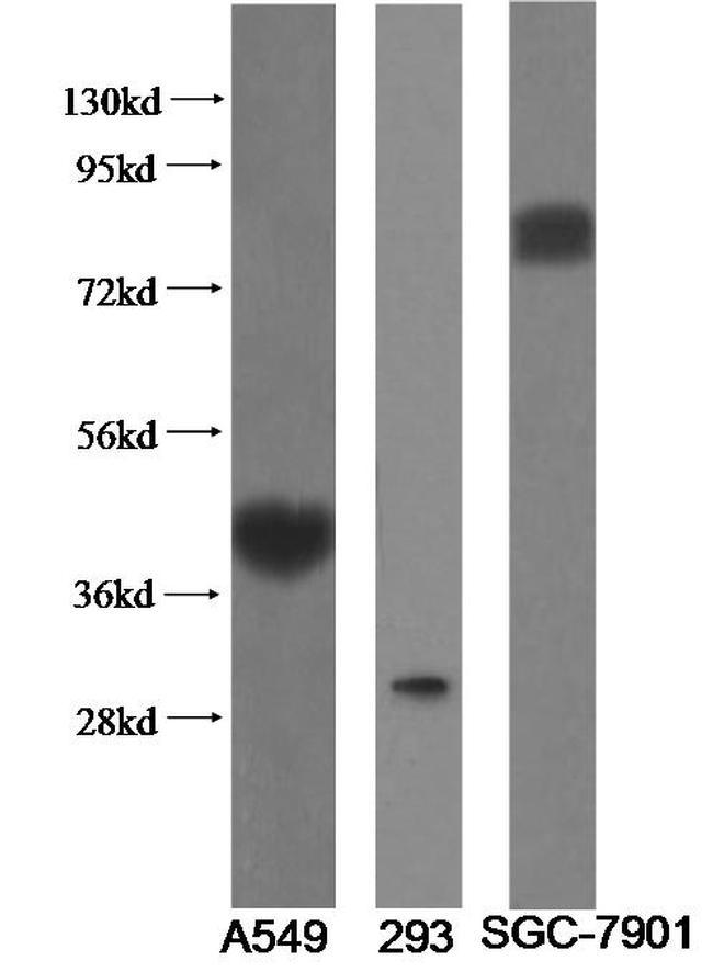 ST2 Antibody in Western Blot (WB)