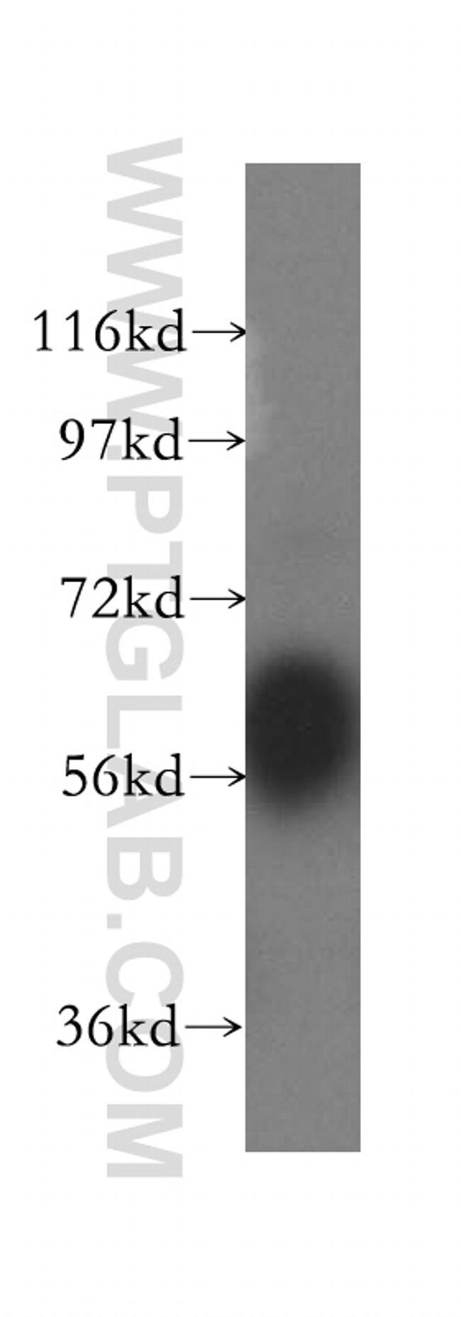 Kininogen 1 Antibody in Western Blot (WB)