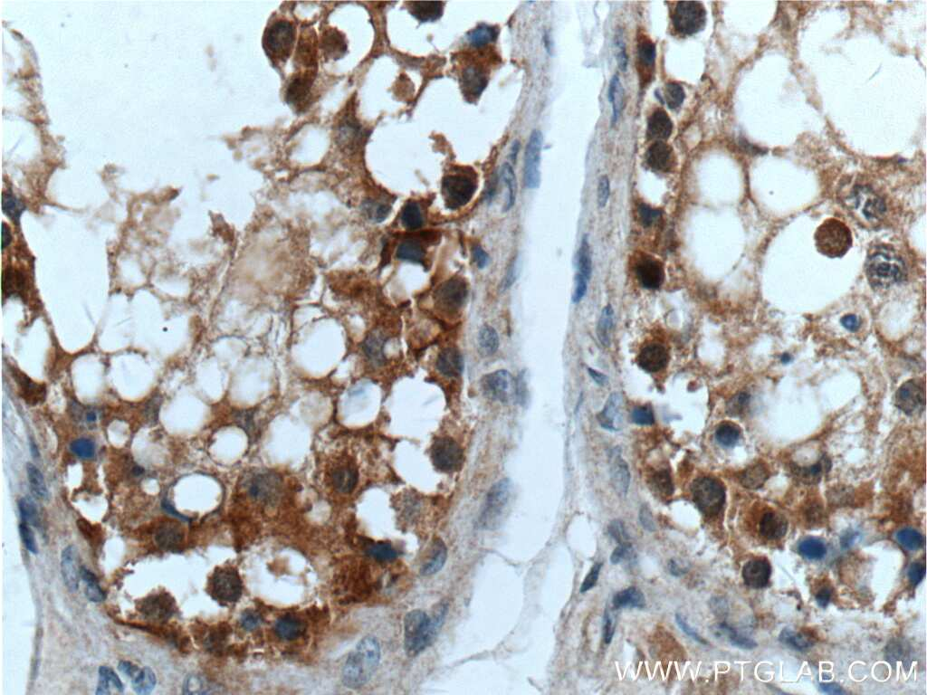 Cyclin E2 Antibody in Immunohistochemistry (Paraffin) (IHC (P))