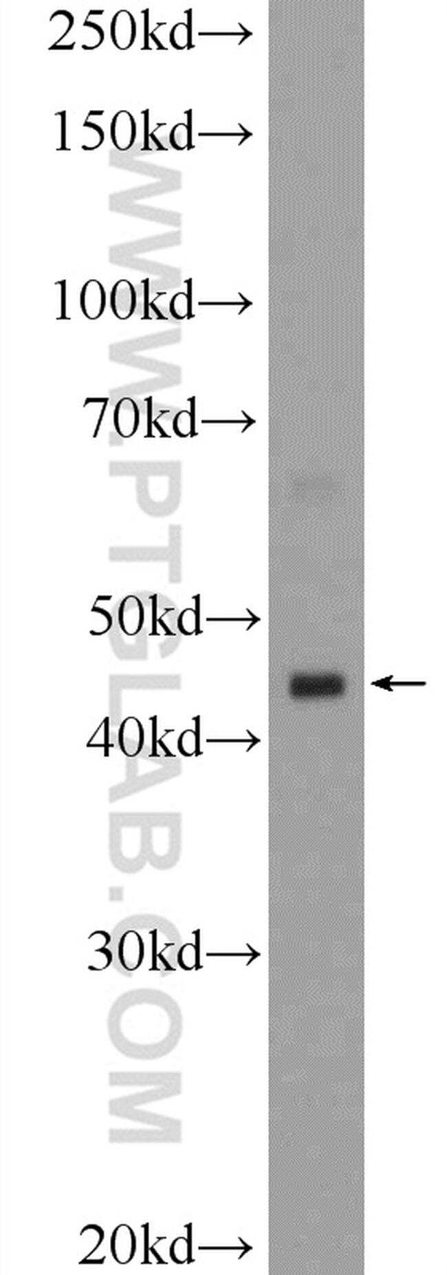 HSFY1 Antibody in Western Blot (WB)