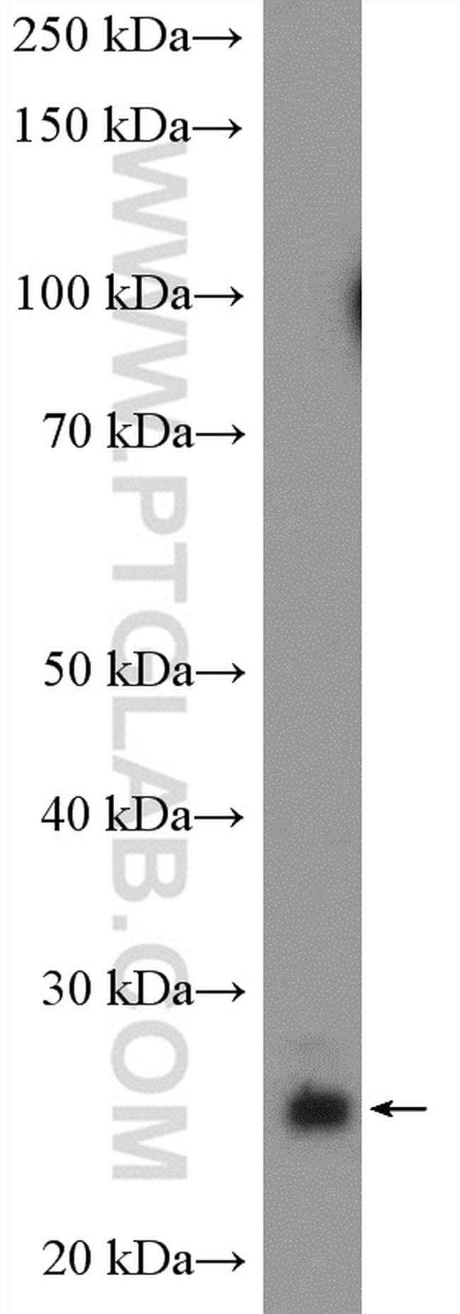 PRTFDC1 Antibody in Western Blot (WB)