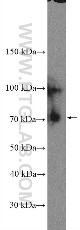 TrkC Antibody in Western Blot (WB)