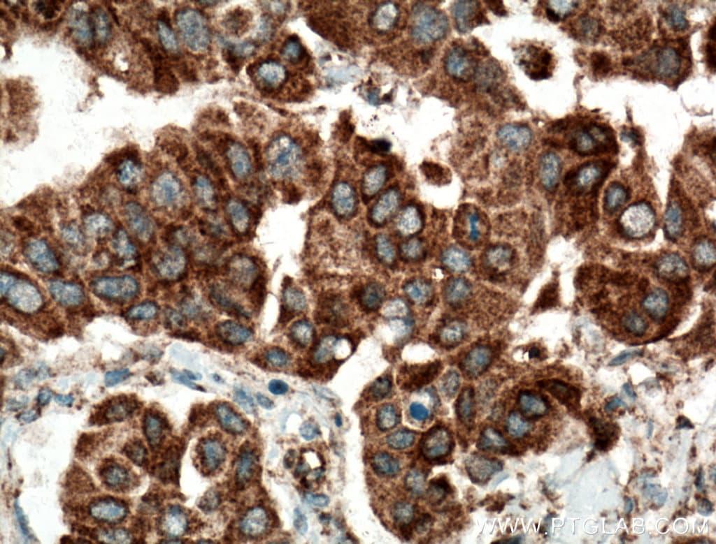 SMYD3 Antibody in Immunohistochemistry (Paraffin) (IHC (P))