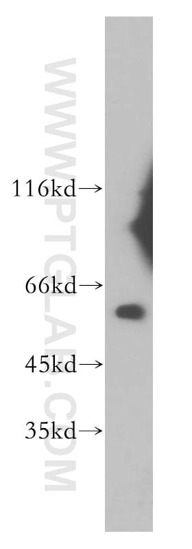 TBCE Antibody in Western Blot (WB)