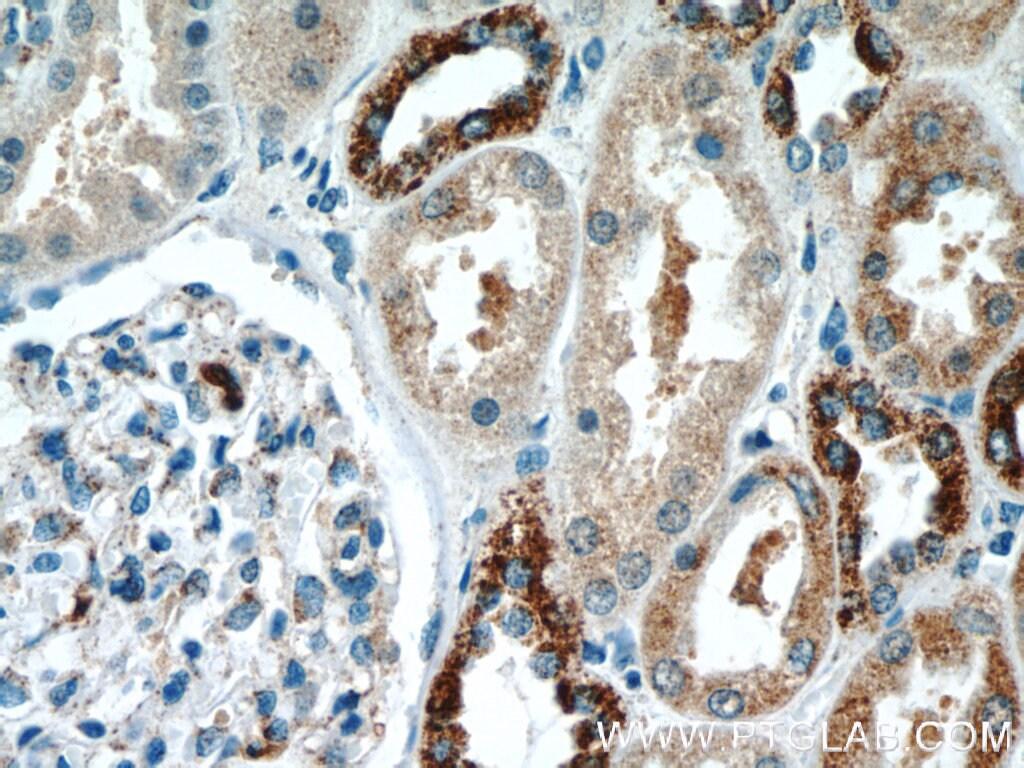 KIF12 Antibody in Immunohistochemistry (Paraffin) (IHC (P))