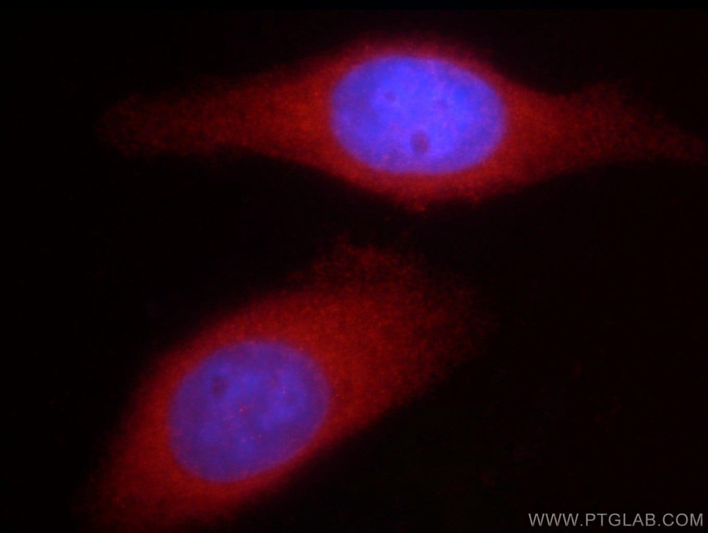 DVL2 Antibody in Immunocytochemistry (ICC/IF)