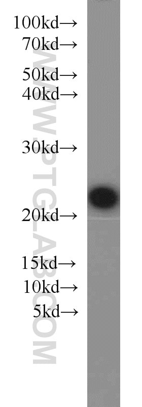 KRAS Antibody in Western Blot (WB)
