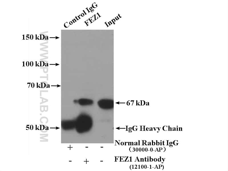 FEZ1 Antibody in Immunoprecipitation (IP)