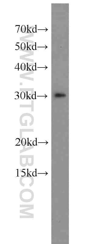 SPIN1 Antibody in Western Blot (WB)
