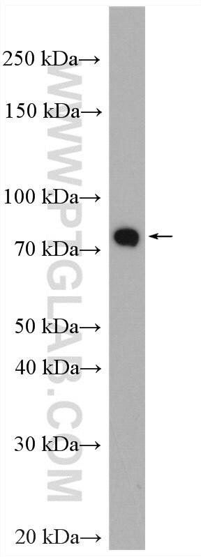 PADI2 Antibody in Western Blot (WB)