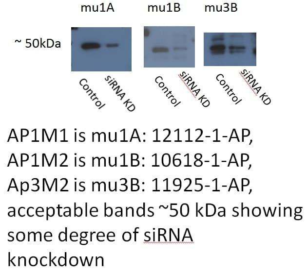 AP1M1 Antibody in Western Blot (WB)