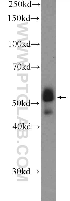 ETS1 Antibody in Western Blot (WB)