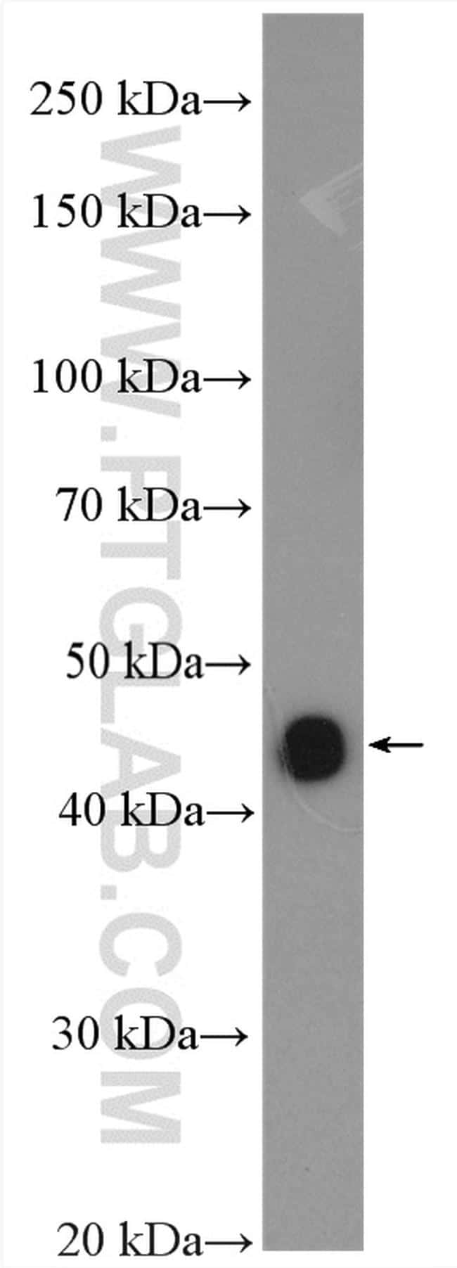 NEIL1 Antibody in Western Blot (WB)