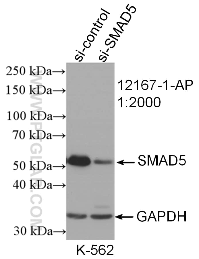 SMAD5 Antibody in Western Blot (WB)