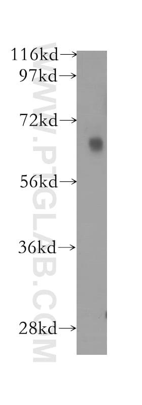 FKBP65 Antibody in Western Blot (WB)