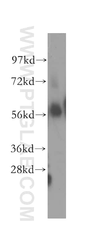 OXCT1 Antibody in Western Blot (WB)