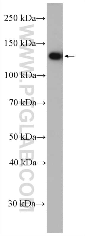 USP25 Antibody in Western Blot (WB)