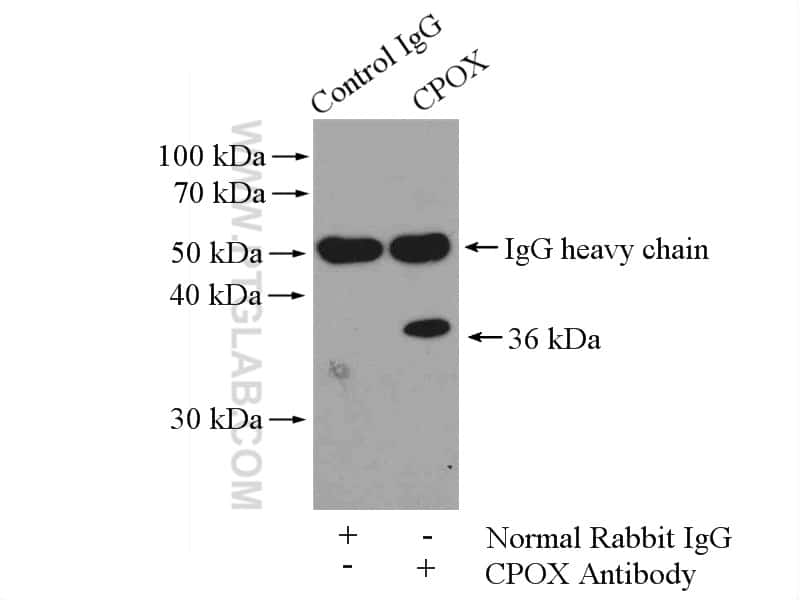 CPOX Antibody in Immunoprecipitation (IP)