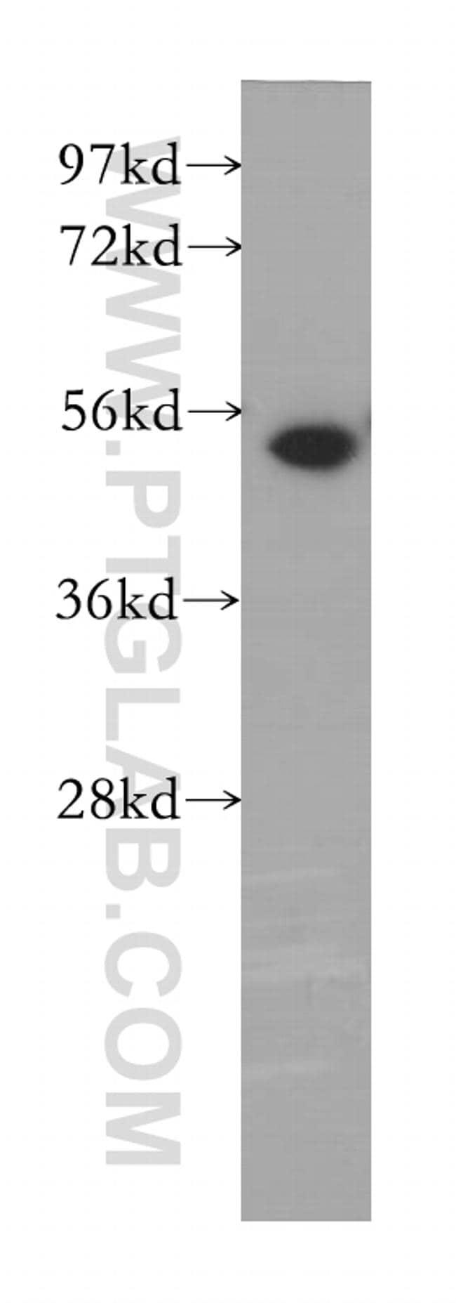 MINA Antibody in Western Blot (WB)