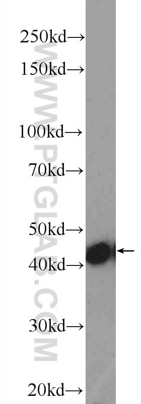 Gamma cystathionase Antibody in Western Blot (WB)