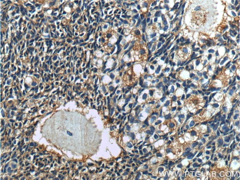 Cystatin C Antibody in Immunohistochemistry (Paraffin) (IHC (P))