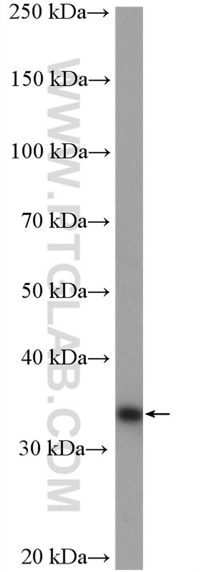 ZWINT Antibody in Western Blot (WB)