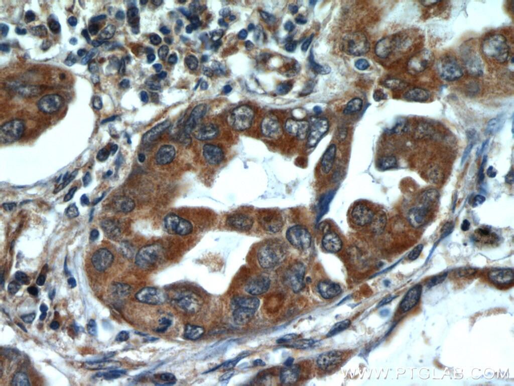 ALKBH3 Antibody in Immunohistochemistry (Paraffin) (IHC (P))