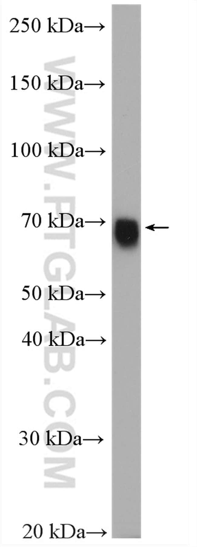 GATAD2A Antibody in Western Blot (WB)