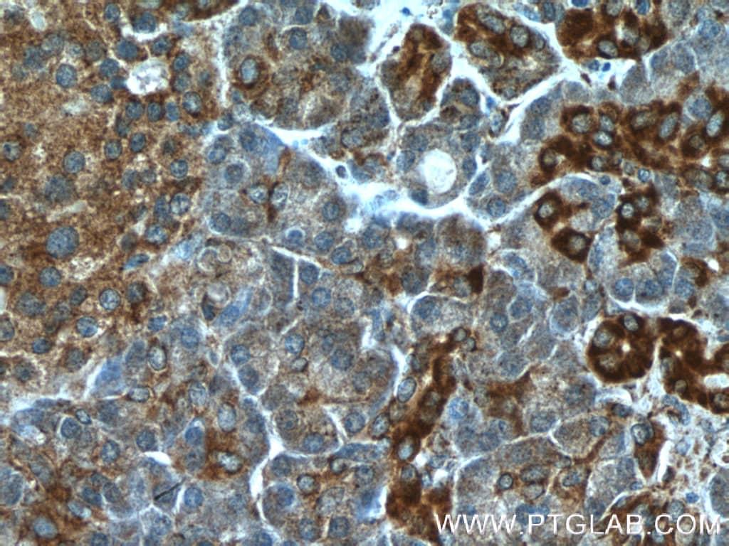 Prohibitin 2 Antibody in Immunohistochemistry (Paraffin) (IHC (P))
