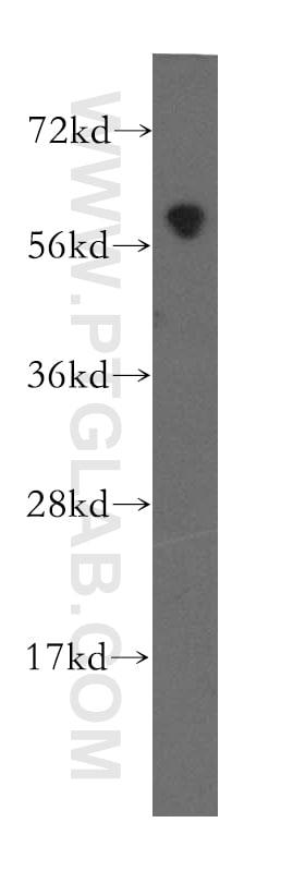 MTMR8 Antibody in Western Blot (WB)