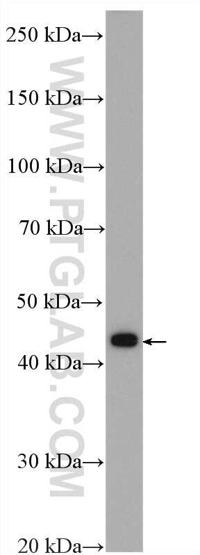 ZFP36L1 Antibody in Western Blot (WB)