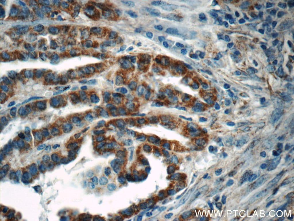 ACAA1 Antibody in Immunohistochemistry (Paraffin) (IHC (P))