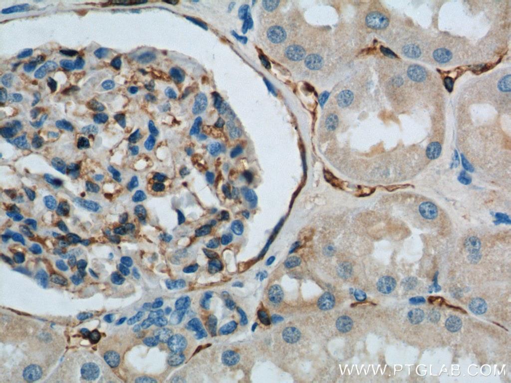 SDPR Antibody in Immunohistochemistry (Paraffin) (IHC (P))