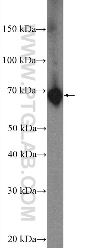 SDPR Antibody in Western Blot (WB)