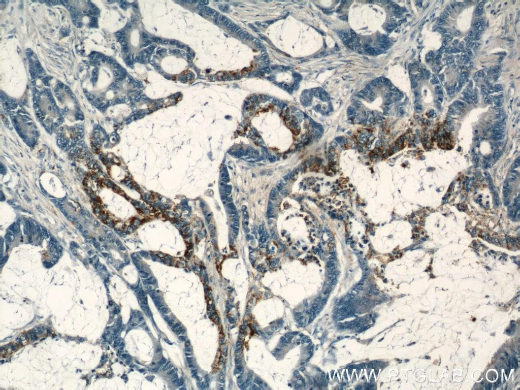 COX2 Antibody in Immunohistochemistry (Paraffin) (IHC (P))