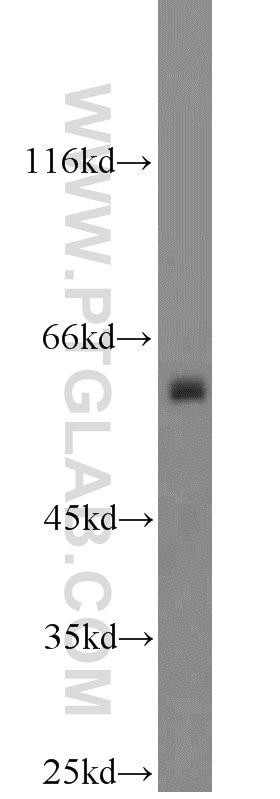 COX2 Antibody in Western Blot (WB)