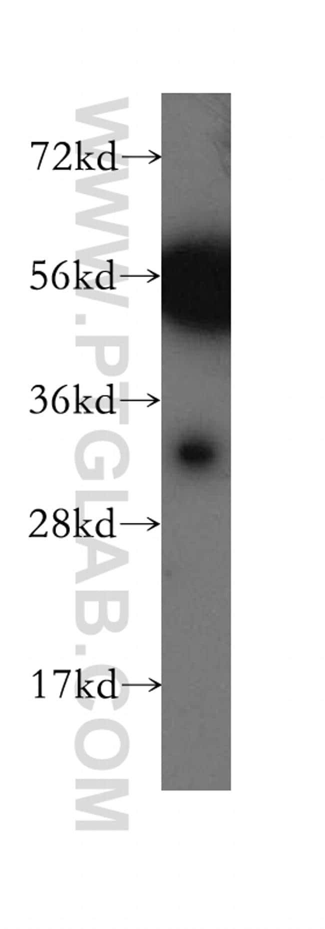 CA8 Antibody in Western Blot (WB)
