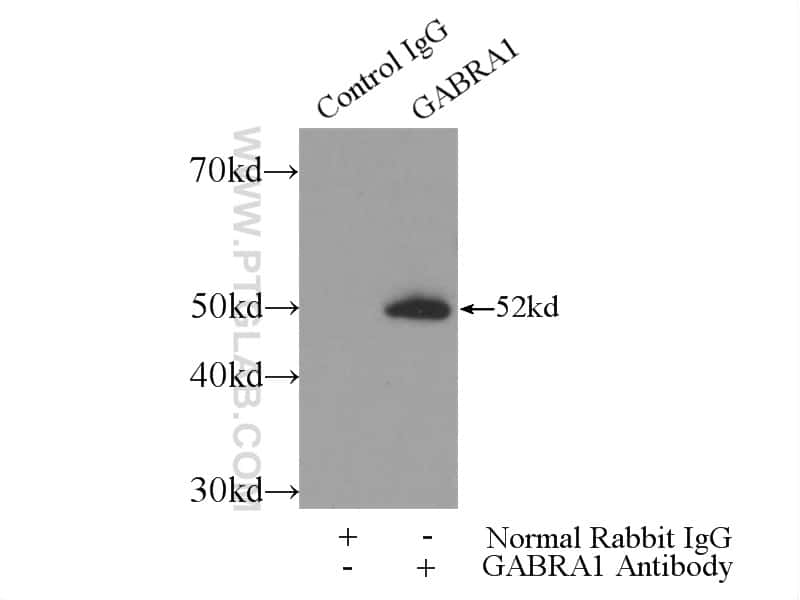 GABRA1 Antibody in Immunoprecipitation (IP)