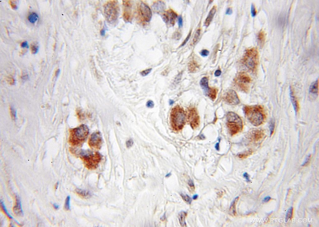 PI4KA Antibody in Immunohistochemistry (Paraffin) (IHC (P))