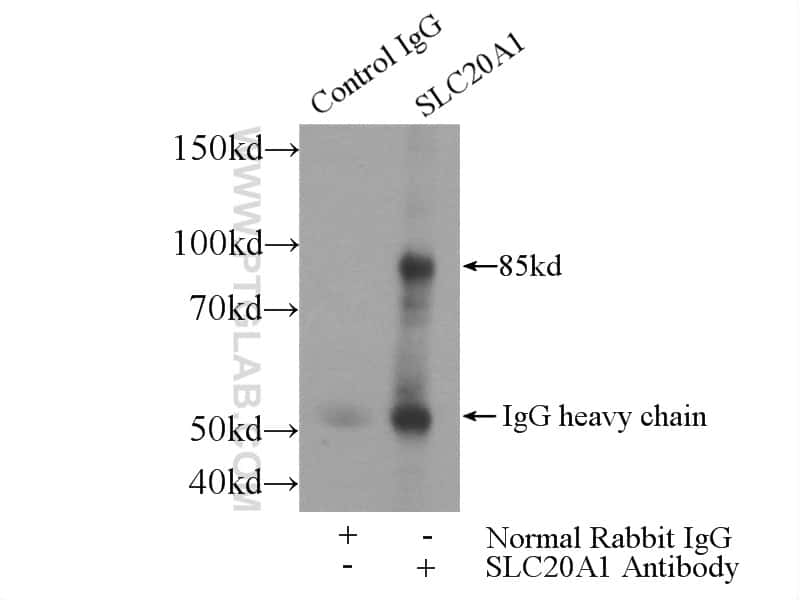 SLC20A1 Antibody in Immunoprecipitation (IP)