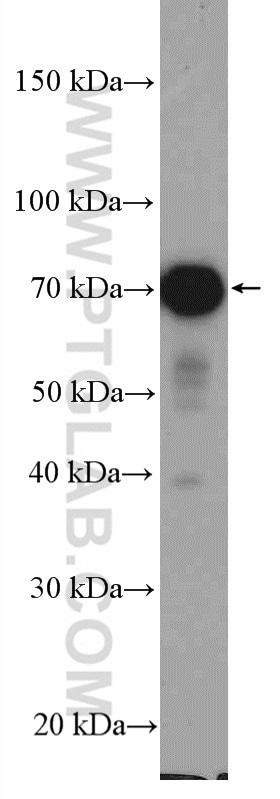 STAM Antibody in Western Blot (WB)