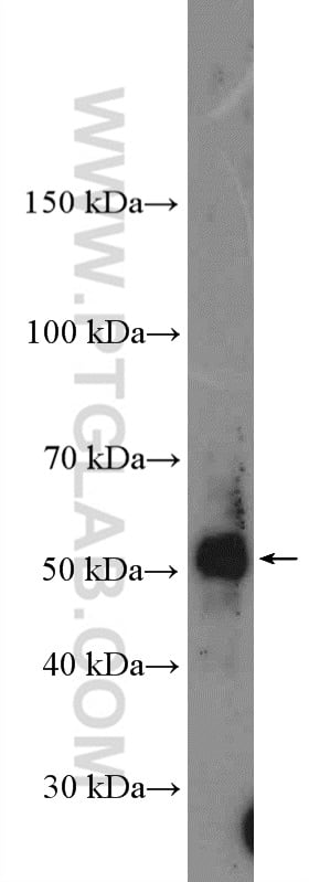 TBX6 Antibody in Western Blot (WB)