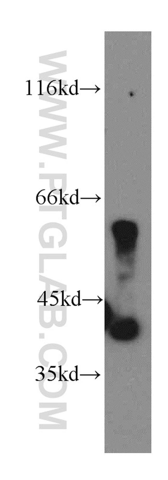 PANK1/2/3 Antibody in Western Blot (WB)